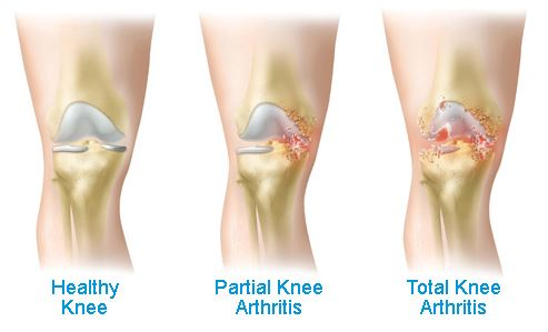 Knee Pain Overview