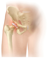 Hip Pain Overview